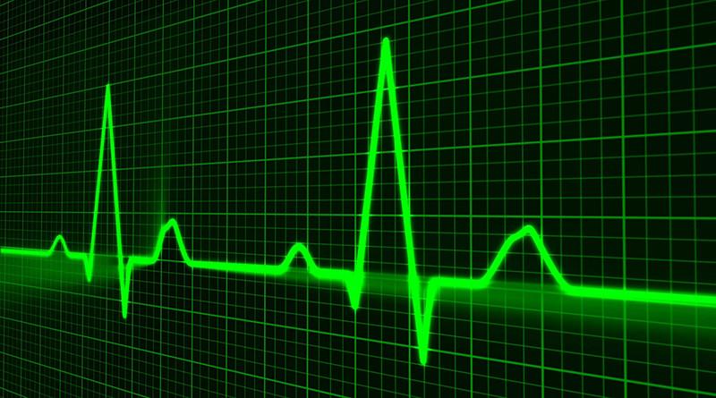 Мобильный электрокардиограф разработали в Беларуси
