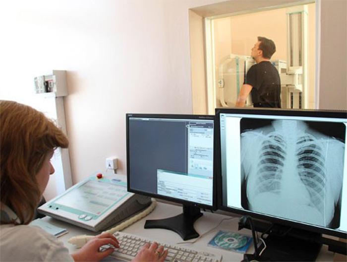 Обследование на туберкулез не реже одного раза в год поможет не пропустить развитие болезни