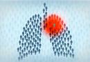 Стрессы и сниженный иммунитет могут привести к туберкулезу. Как избежать заболевания и его последствий новополочанам? Советы специалистов