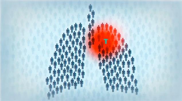 Туберкулез миниатюры
