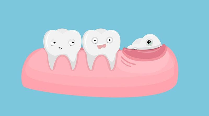 зуб мудрости_восьмерка